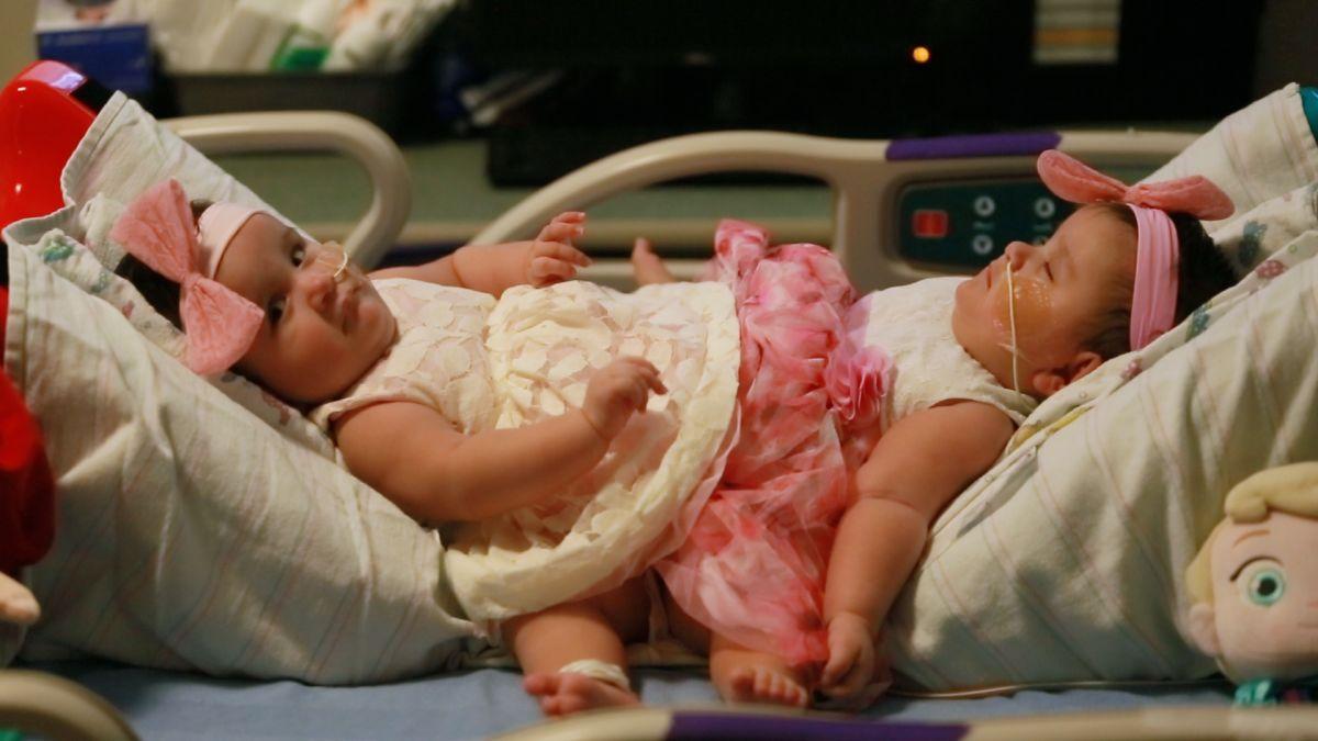 Le storie più commoventi di gemelli siamesi <br> C'è persino chi, dopo la dipartita del fratello, si è lasciato morire